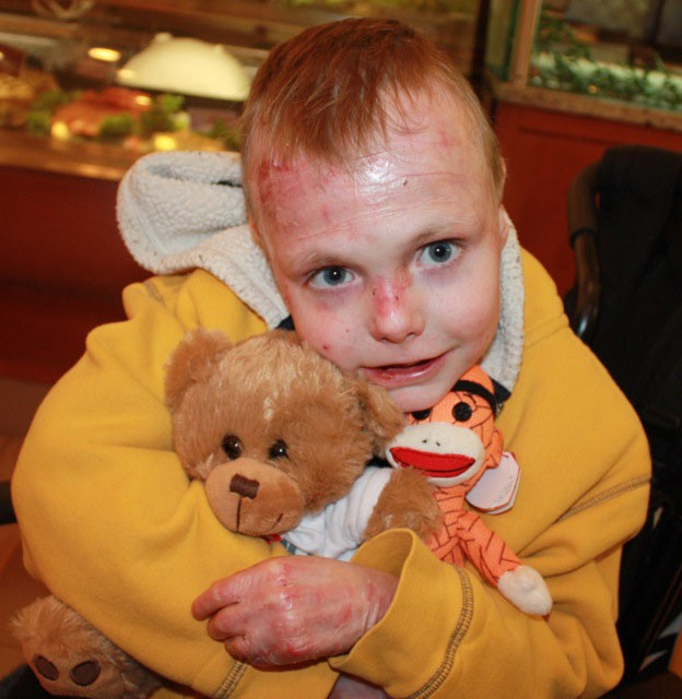 Charlie Knuth, 7, from Appleton, Wis. holds his stuffed animals. Knuth has been to Amplatz Children's Hospital twice for stem cell transplants.Wounds from his rare disease, recessive dystrophic epidermolysis bullosa (RDEB), used to cover 90 percent of his skin, throat, intestinal tract and eyes. After the transplants, they cover about 5 percent.