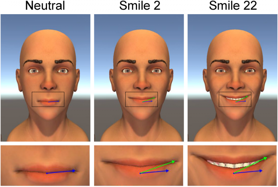 Researchers at the University of Minnesota broke down a smile into different characteristics: mouth angle between the green and blue lines, smile width and